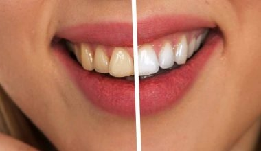 Comparison. Fluorosis Teeth vs. Normal